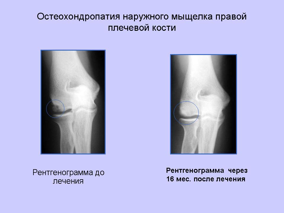 остеохондропатия коленного сустава что это